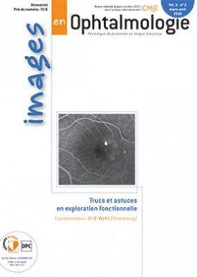 images en ophtalmologie avril 2016 13237710