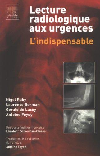 [livre]:Lecture radiologique aux urgences: l'indispensable pdf gratuit - Page 10 41k0nb10