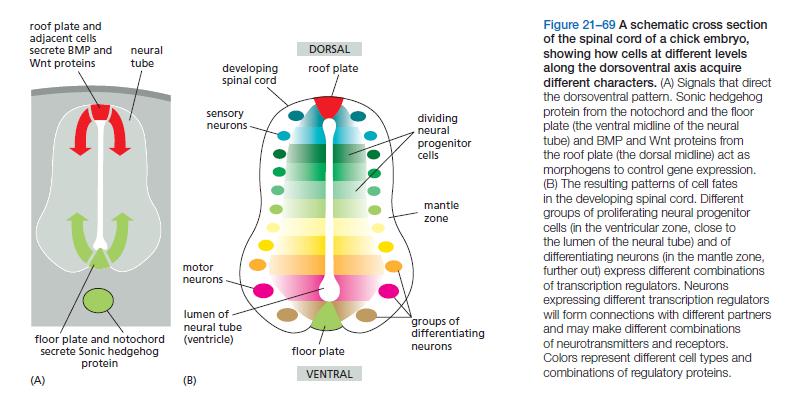 Neural development Spinal10