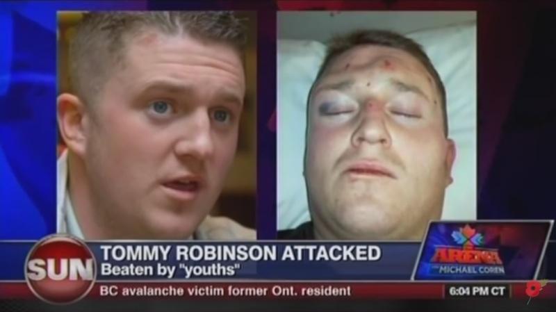 SOS - Tommy Robinson est en danger. Aidons le ! Tommy_10
