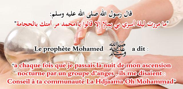 La hijama الحجامة Slide_10