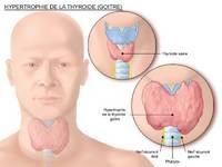 Les glandes endocrines  Thyroy10