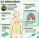 image des maladies de poument Tylych10