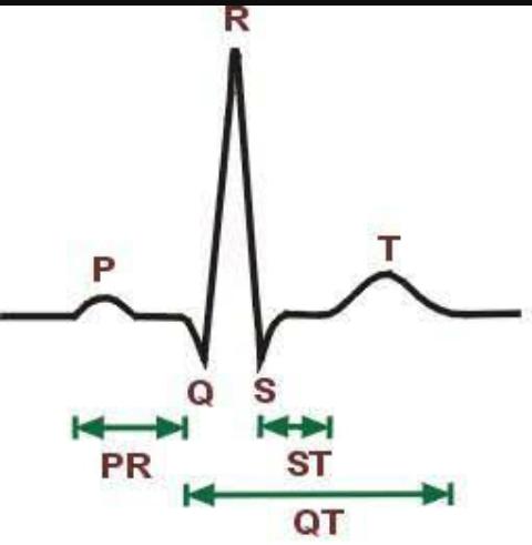 L'électrocardiographie ecg Scree100