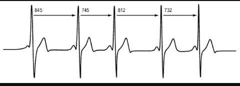 Le rythme cardiaque normal  Screen67