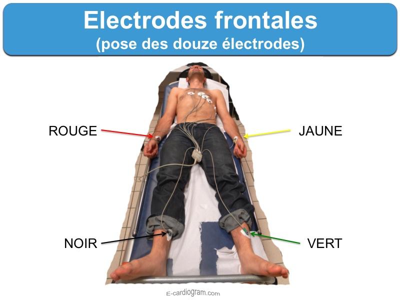 placement  de l'ECG Electr10