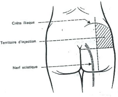 injection en IM  Inject10