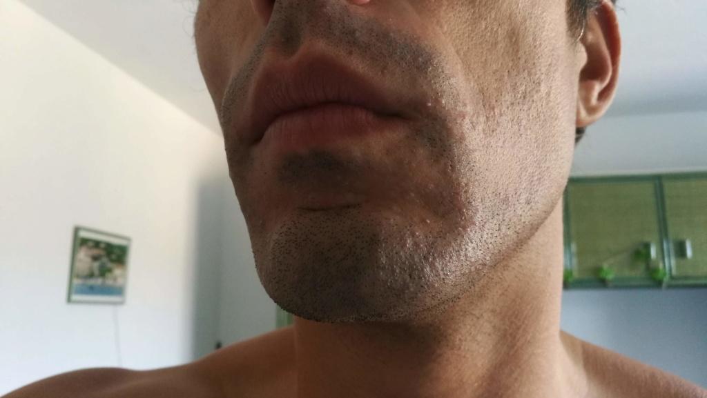 Problème de peau suite au rasage Img_2010