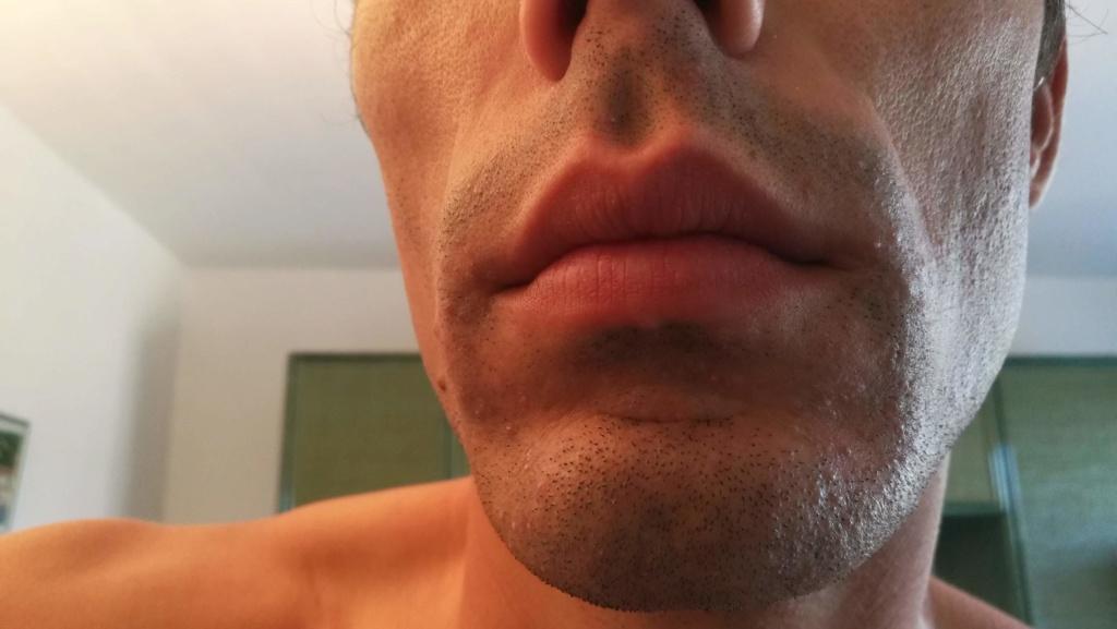 Problème de peau suite au rasage Img_2011
