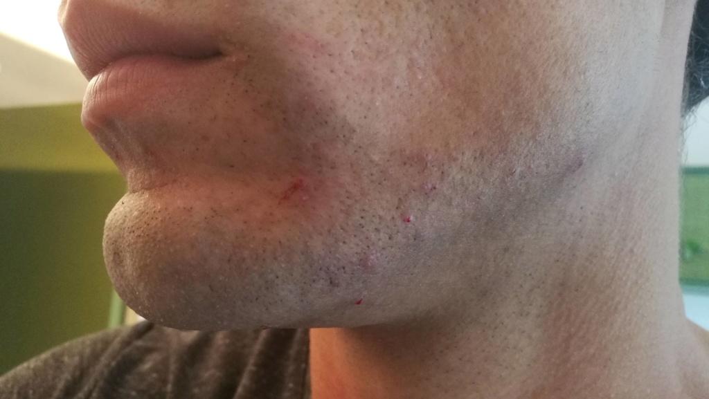 Problème de peau suite au rasage Img_2012