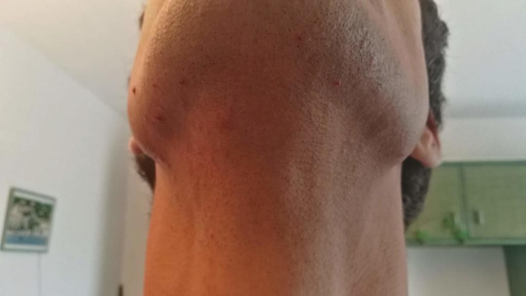 Problème de peau suite au rasage Img_2013