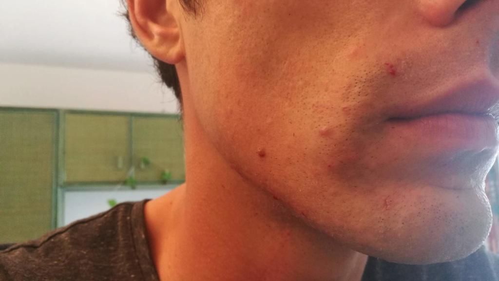 Problème de peau suite au rasage Img_2015