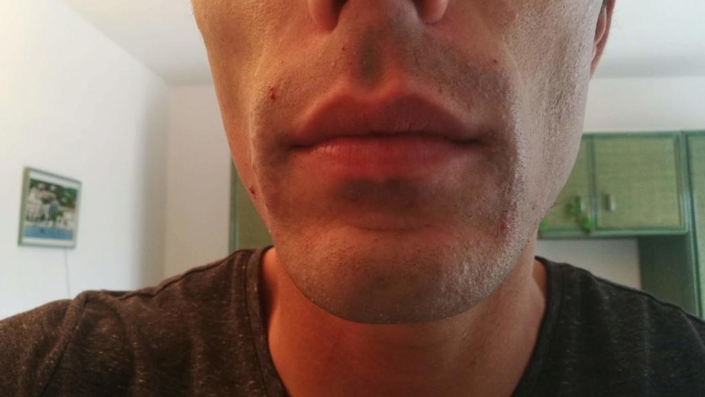Problème de peau suite au rasage Img_2016