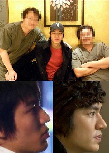 Lee Min-ho had plastic surgery? Leemin10