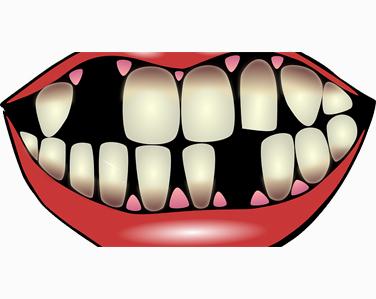تفسير رؤية سقوط الاسنان في المنام 111