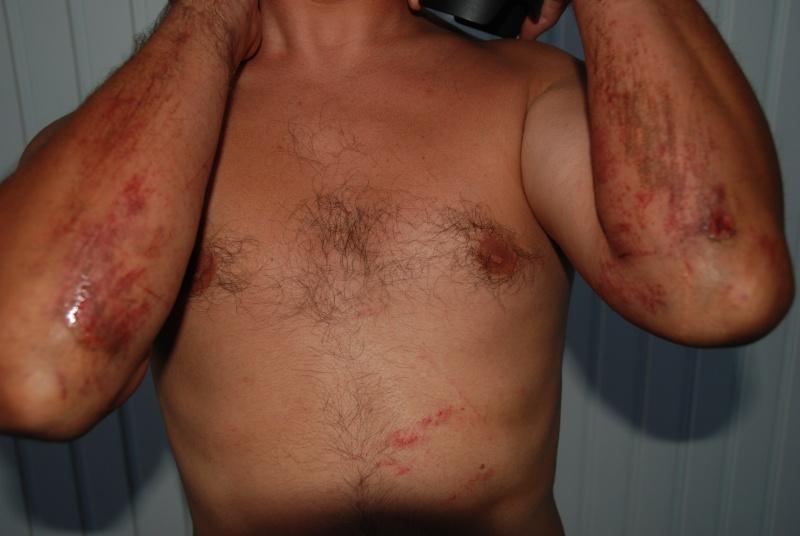 Cicatrices de guerre Dsc_4911