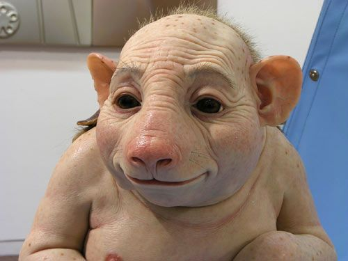 Pic of the first person to have fully recovered from swine flu with only slight side effects Image010