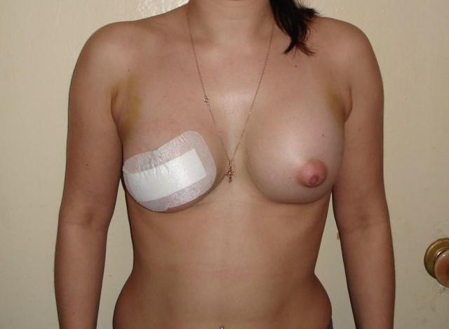 Увеличивающая маммопластика: делимся опытом :) - Страница 4 57734010