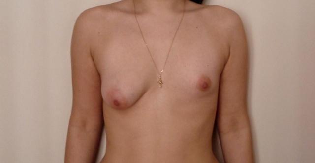 Увеличивающая маммопластика: делимся опытом :) - Страница 4 Dd10