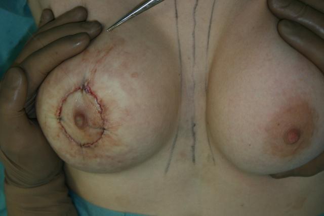 Увеличивающая маммопластика: делимся опытом :) - Страница 4 Img64710