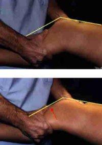 l'examen clinique du genou Lcalcl10