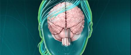 Perdre le syndrome de la poignée dans l'angle... - Page 3 Cervea10