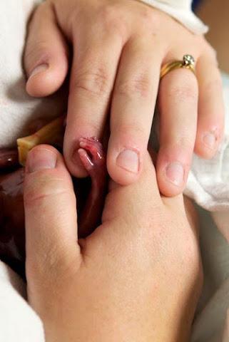 L'embryon est une personne Embryo17