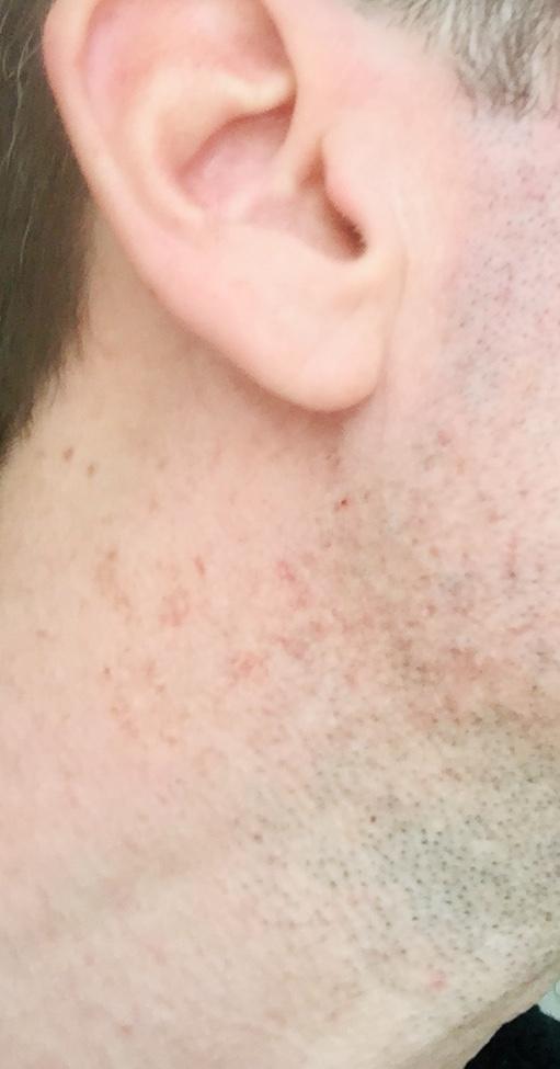 La dermatite des parfums  82138510