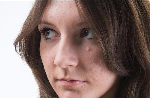 45 - Comment retoucher la peau d'un visage avec la technique de la séparation de fréquence ? Travai14