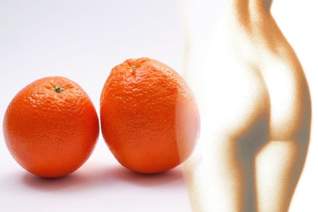 Лучшие средства против целлюлита Orange10