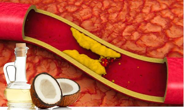 Tác dụng của dầu dừa đối với sức khỏe, da mặt và làm đẹp Dau-du13