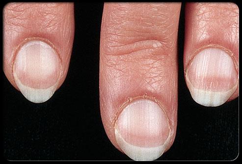 معلومات طبية هامة وخطيرة حول اضافرك Nail_110