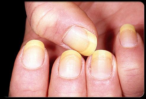 معلومات طبية هامة وخطيرة حول اضافرك Nail_310