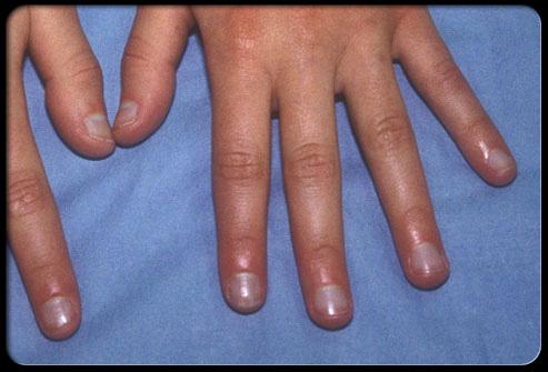 معلومات طبية هامة وخطيرة حول اضافرك Nail_410