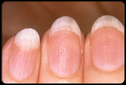 معلومات طبية هامة وخطيرة حول اضافرك Nail_511