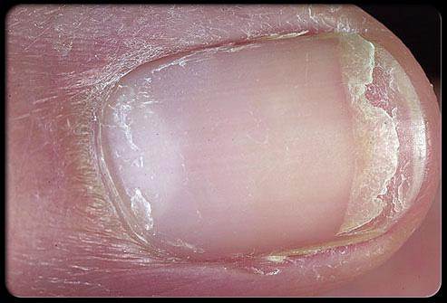 معلومات طبية هامة وخطيرة حول اضافرك Nail_610