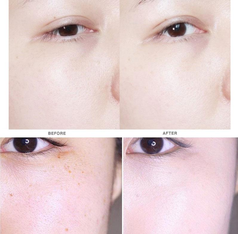 Nước hoa hồng Dongsung Rannce Skin trị mụn, dưỡng trắng, trị nám hiệu quả Nuoc_h11
