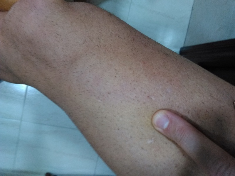 FOTOS DE CICATRICES ANTES Y DESPUES EN LA CLINICA RENOBEL Img_2011