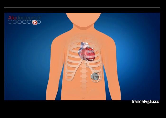 Des pacemakers adaptés pour les bébés Sans_317