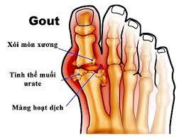 Đồ ăn hàng ngày mà người bệnh bị gout nên ăn Benh_g10