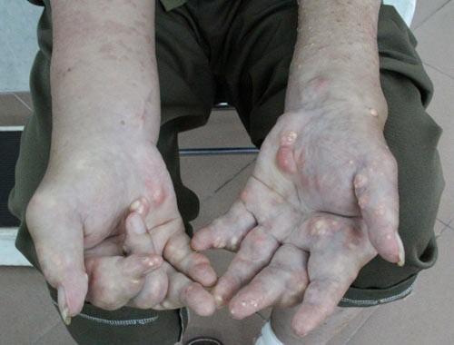 Cách khắc phục triệu chứng gút hiệu quả Hinh_a10