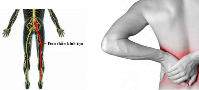 Đau dây thần kinh tọa vùng thắt lưng Dau_da10