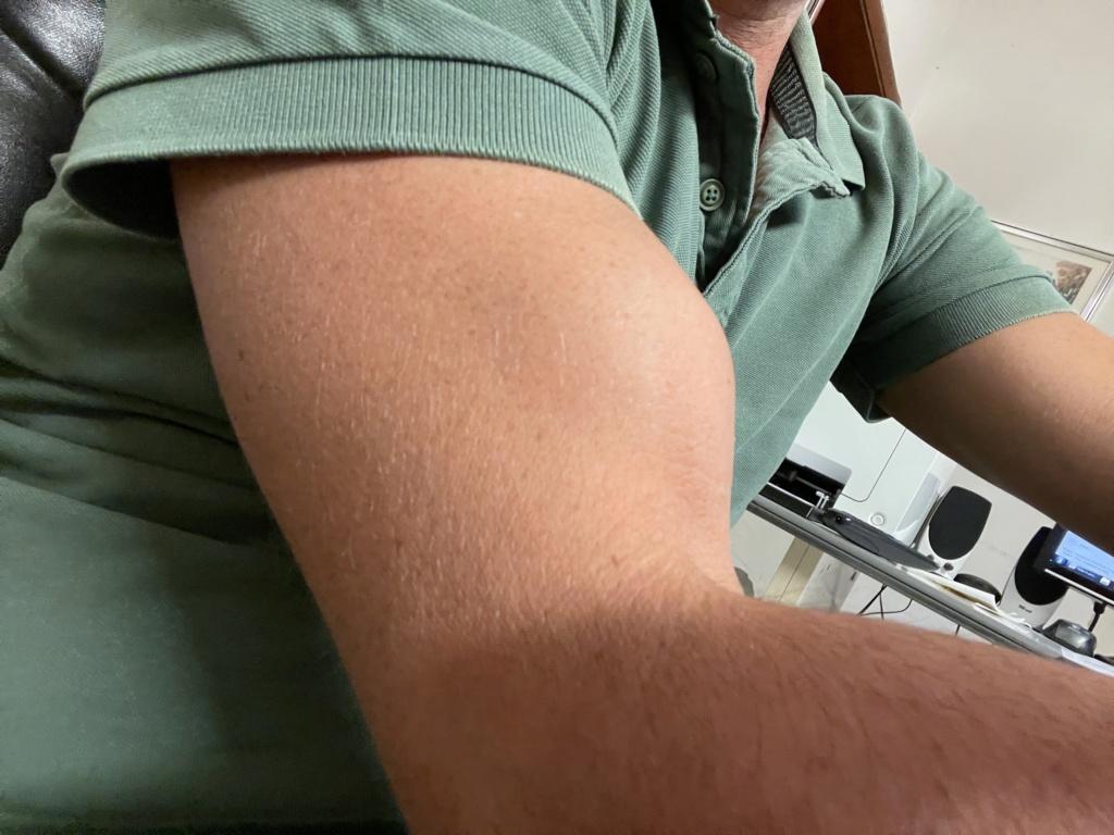 Rottura tendine capo lungo distale Ac0ce410